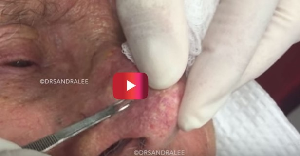 Dr. Pimple Popper's her name, and grossing people out with videos like this is her game