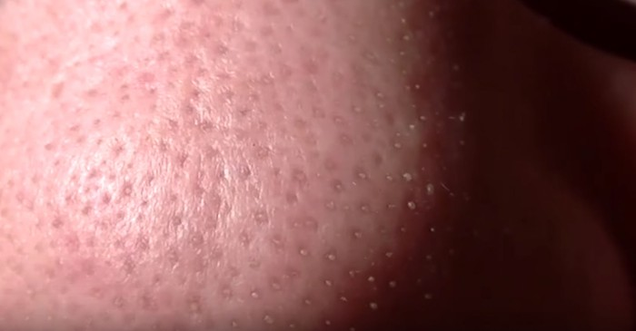 This man's nose was bursting with clogged pores, but he pulls a strip away — what a relief