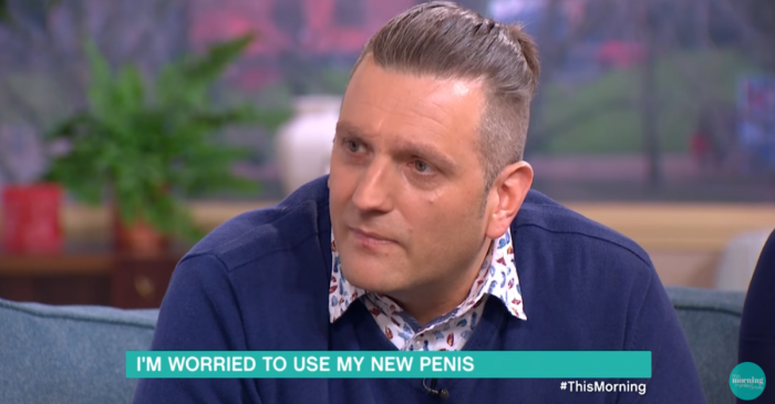 The guy who was born without his manhood is finally getting a penis — there's just one awkward catch