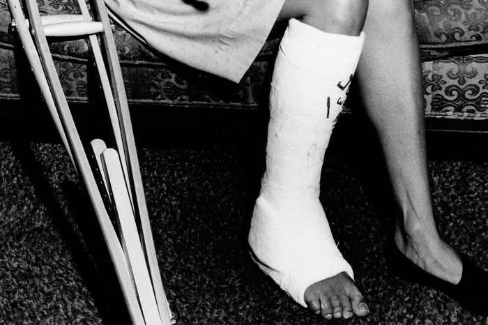 "We don't literally want actors to ""break a leg,"" so why do we say it before a performance?"
