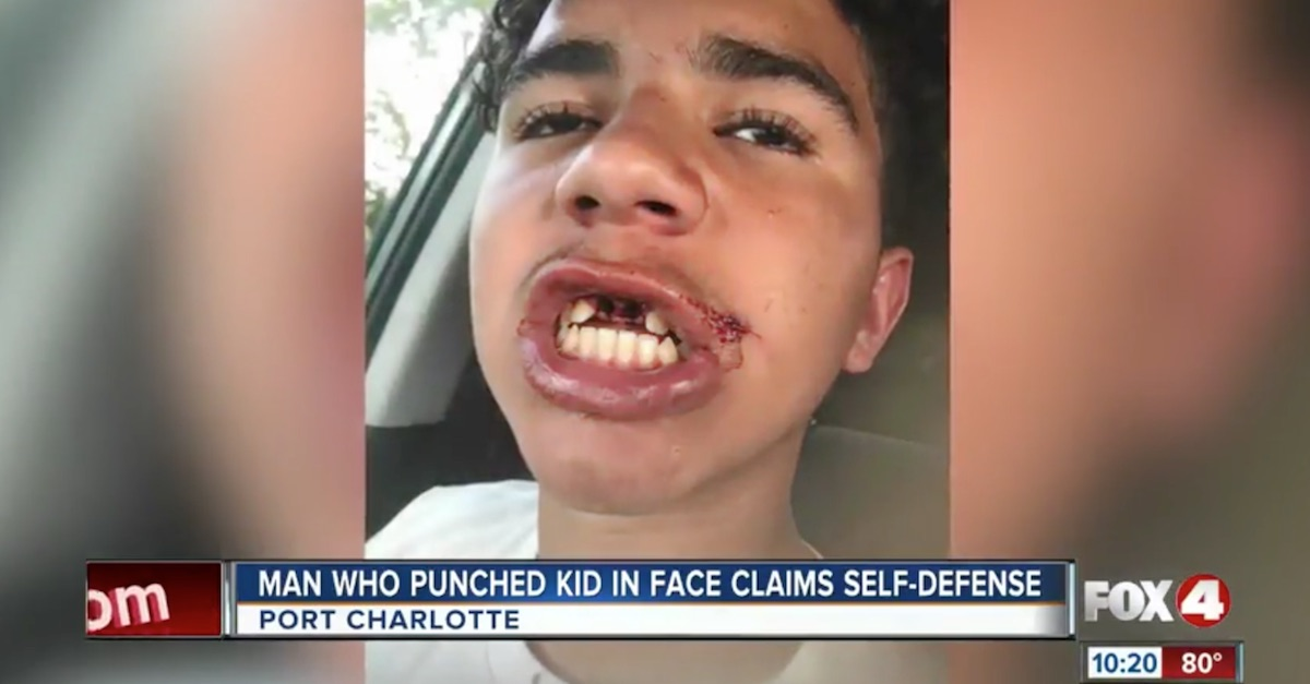 Grown man who punched a kid's teeth out and claimed self-defense tells his side of the story