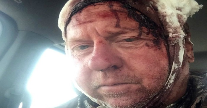 A bear gave this bow hunter more than he bargained for, and he has the scars to prove it