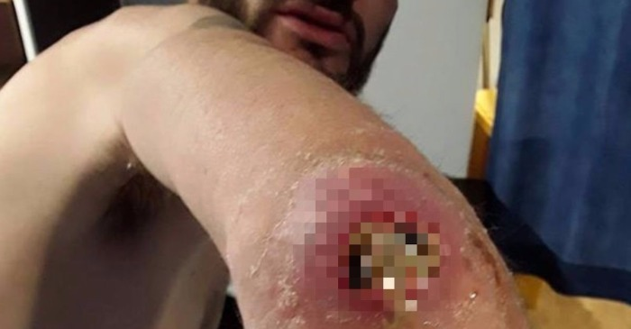 The gaping, gooey hole left in a man's elbow by a spider bite is the stuff of nightmares