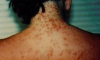 Sea Lice Florida Panhandle