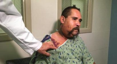 Arizona Man Bit Face Rattlesnake BBQ
