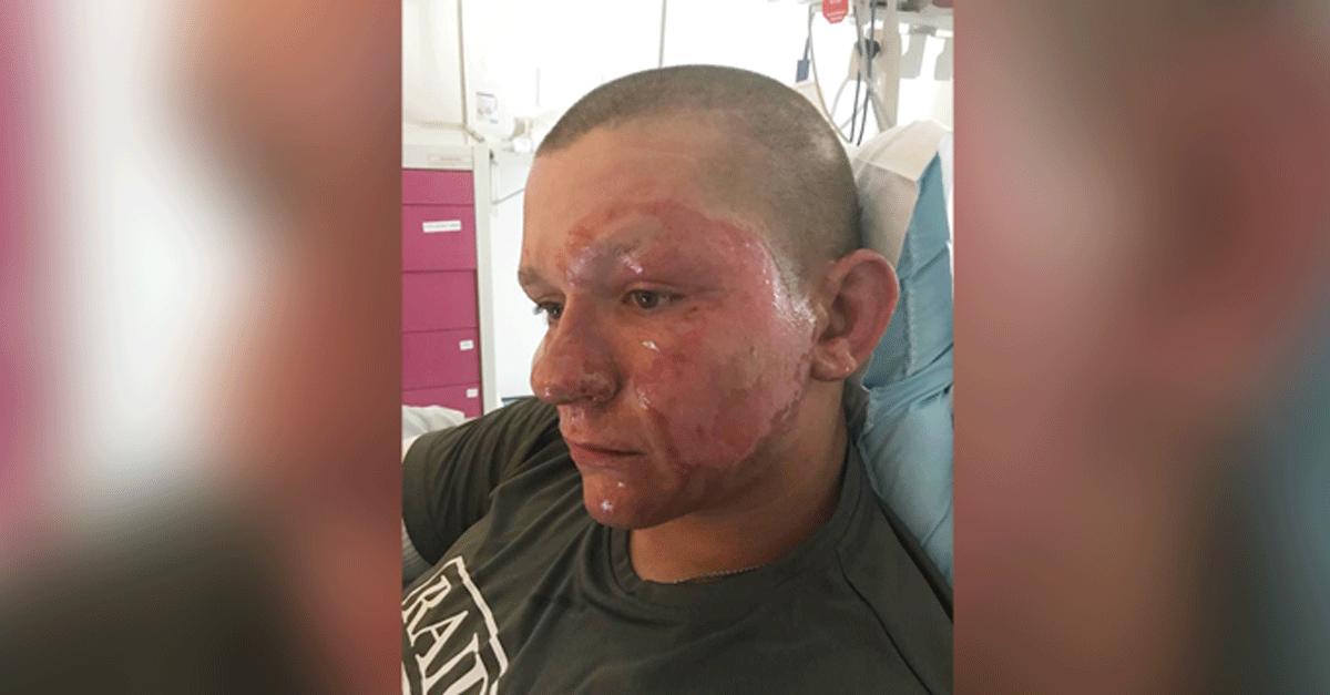 Giant Hogweed Burns Face