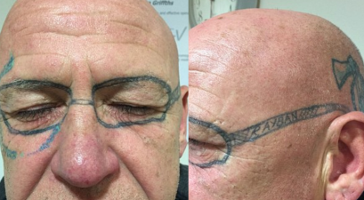Man Face Tattoo Drunk