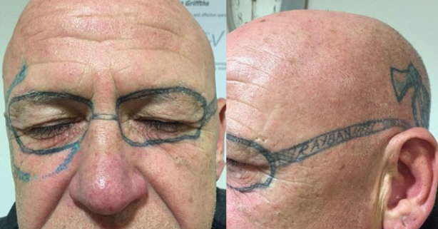 A Man's 'Friends' Tattooed Glasses on Him After He Passed Out Drunk