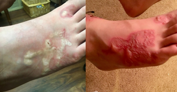 Teen Gets Gruesome Hookworm Infection At Beach During Mission Trip