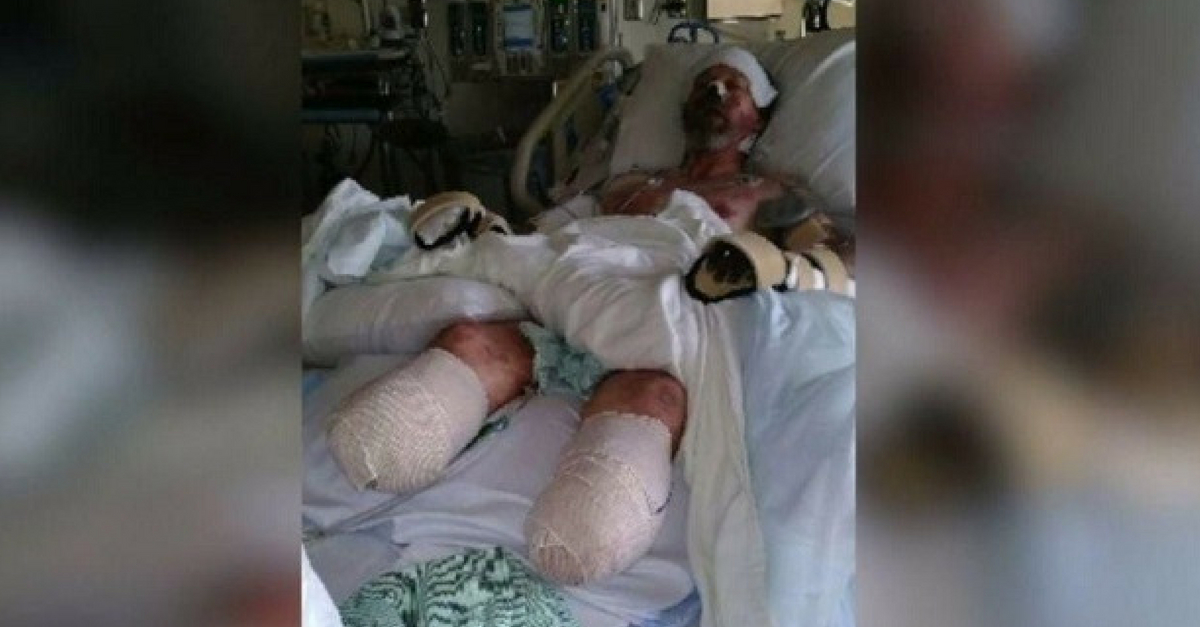 Wisconsin Man Looses Limbs From Dogs Saliva That Led To Rare Infection