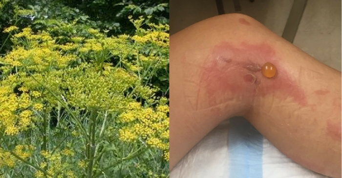 Roadside Plant Causes Second-Degree Burns On Vermont Woman