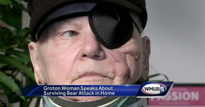 Woman Who Survived Bear Attack Has No Hard Feelings