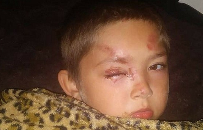UPDATE: Police Discover Viral Bullying Story from Young Boy Was a Total Lie