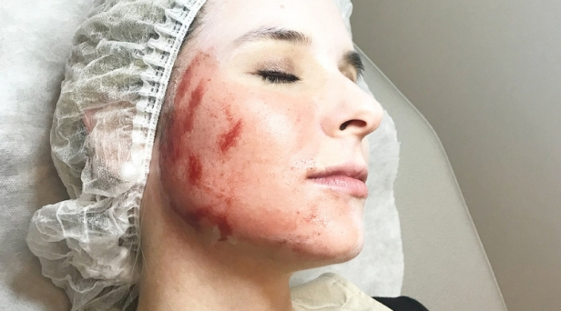 'Vampire Facial' Clients Urged to Test for HIV and Hepatitis