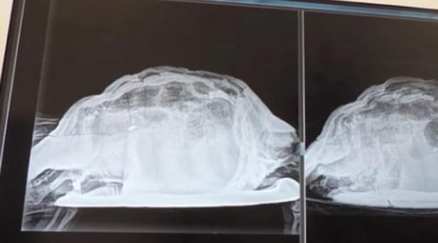 ER Doctor Finds Dead Turtle in Woman's Vagina