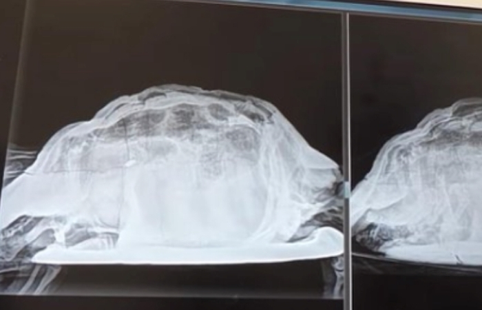 ER Doctor Finds Dead Turtle in Woman's Vagina