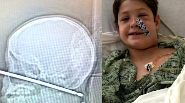 10-Year-Old Boy Survives After Falling Face First On Metal Meat Skewer