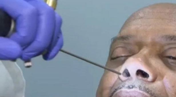 Man's Runny Nose Turns Out To Be Leaking Brain Fluid