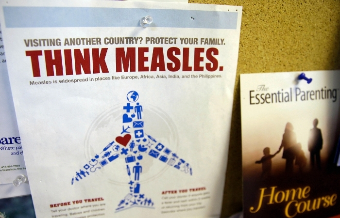 31 Cases of Measles Reported in The Northwest