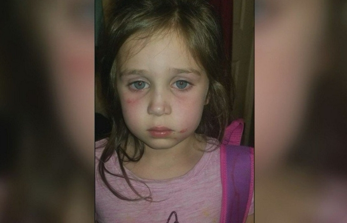 """Bus Ride Was Complete Torture"": 5-Year-Old Girl Attacked on School Bus By 12-Year-Old Bully"