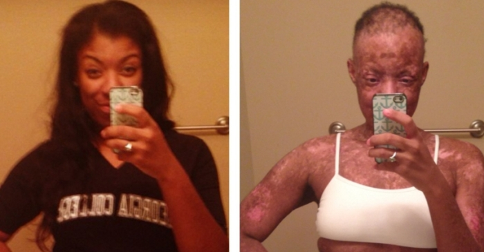 Woman's Skin 'Melted Off' After Doctor Prescribed Wrong Medication