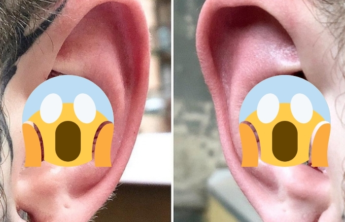 People Are Removing The Inside Of Their Ears As Part of Bizarre New Trend, and We Are So Confused