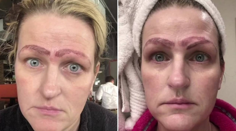 Woman Left With 4 Eyebrows After Botched Microblading Procedure