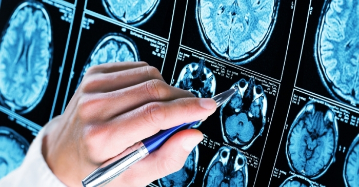 Researchers Develop Vaccine That Could Possibly Prevent Alzheimer's