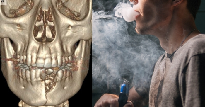 Teen's Jaw Shatters After E-Cigarette Explodes in His Mouth