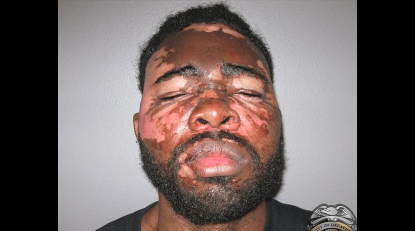 Burglar Burned Hot Grease