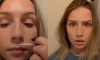 Teenagers Are Gluing Their Lips To Make Them Look Fuller