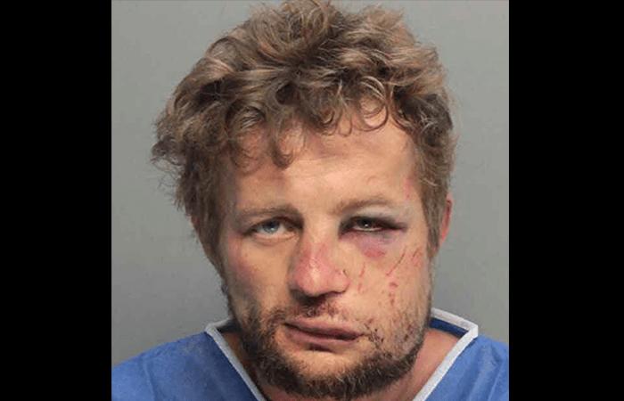 Burglar Breaks Into Home, Gets Face Rearranged