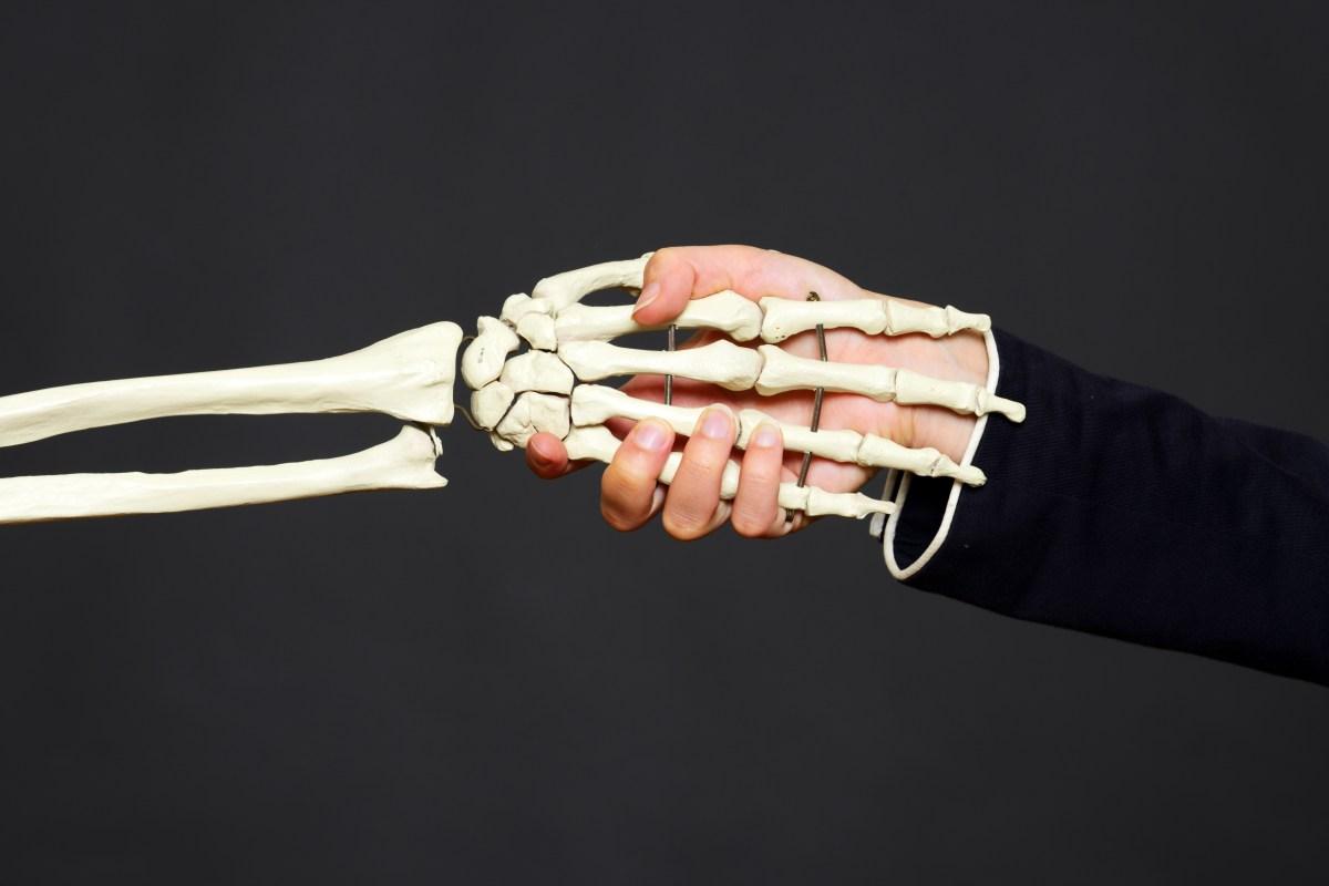 Man keeps severed arm
