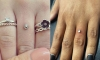 Replacing an Engagement Ring With a Diamond Pierced Into Your Finger is Apparently a Thing Now