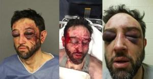 Justin Lecheminant Denver Police
