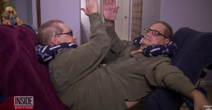 Oldest Living Conjoined Twins Pass Away at 68-Years-Old