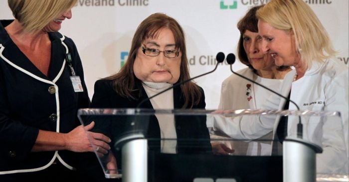 First Face Transplant Recipient in the United States Dies at 57-Years-Old