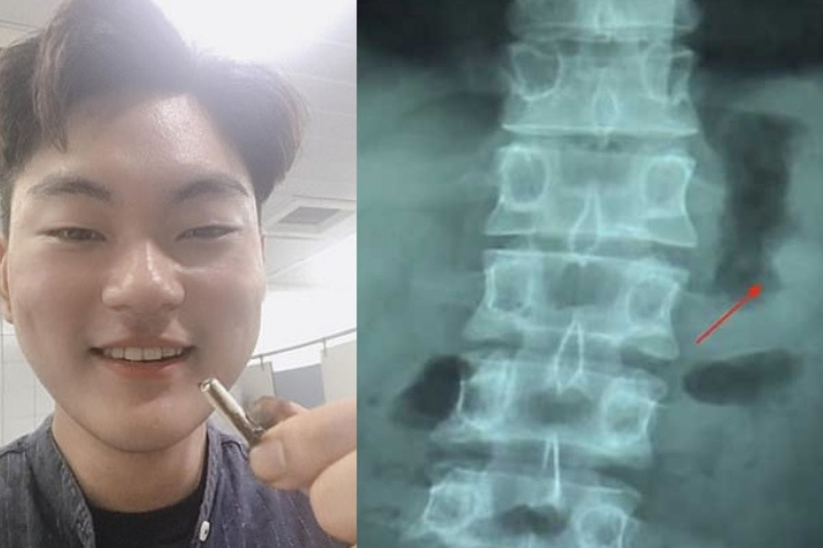 This Guy Accidentally Swallowed His AirPod and it Miraculously Still Worked After Pooping it Out