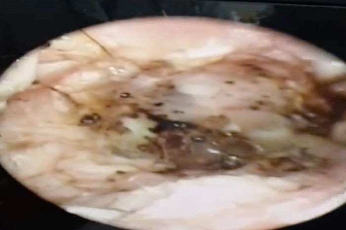 Doctor Finds 2-Inch Mushrooms Growing Inside Man's Ear