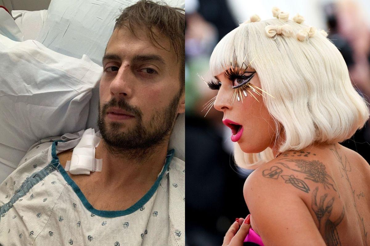 Lady Gaga's Dogs Returned, Injured Dog Walker Speaks Out