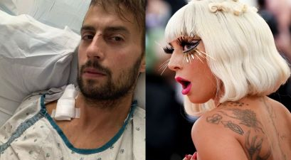 Lady Gaga's Dogs Returned, Injured Dog Walker Speaks Out